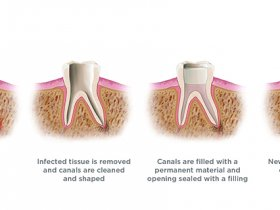 Root canal Treatment Dentist Queens