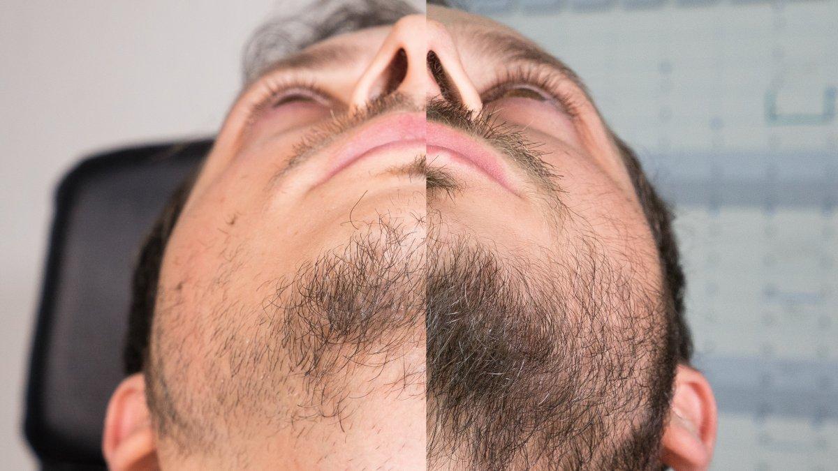 Minoxidil Bart Absetzen